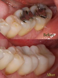 Two Molars that have been treated with two all ceramic IPS e.max crowns